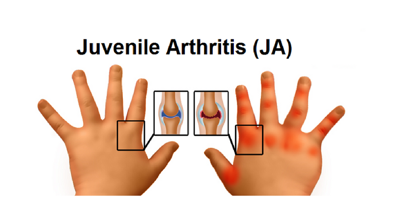 Types and Origin of Juvenile Arthritis